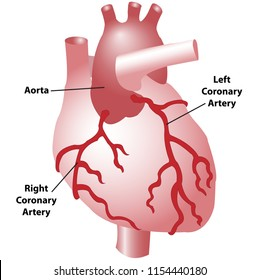 The coronary arteries of the heart, anterior view, including the aorta, left, and right coronary arteries.