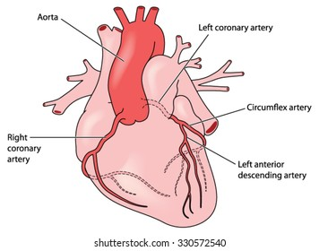 The coronary arteries of the heart, anterior view, including the left anterior descending artery.