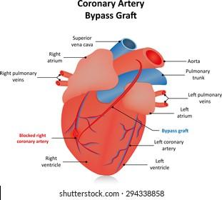 Coronary Artery Bypass Graft Labeled Diagram