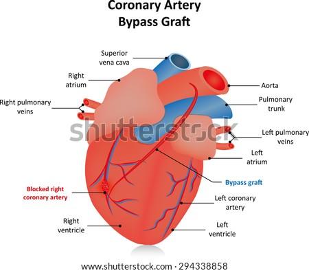 Coronary Artery Bypass Graft Labeled Diagram Stock Vector Royalty
