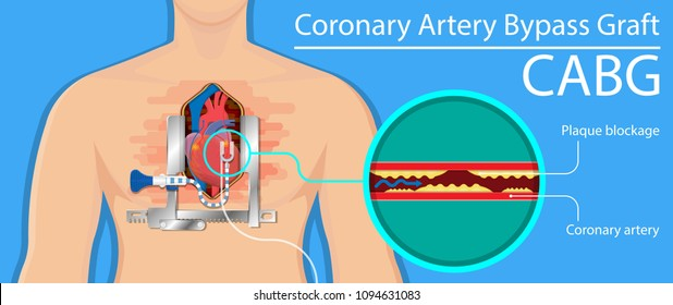 Coronary artery bypass grafting CABG open heart surgery surgical blocked fatty material forms transplant operation attack beating