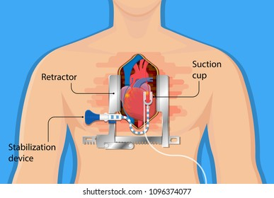 Coronary artery bypass grafting CABG open heart surgery surgical blocked fatty material forms transplant operation attack beating CAD treat CPB