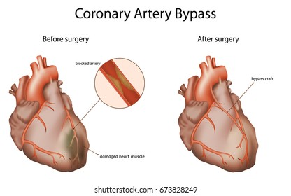 Coronary artery bypass, medical vector illustration. Damaged heart muscle, blocked artery, The bypass graft restores normal blood flow to an obstructed coronary artery.