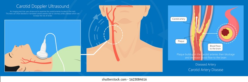 Coronary artery disease CAD diagnosis carotid duplex doppler ultrasound study treat Endarterectomy transient ischemic attack test TIA blocked blood flow neck stent
