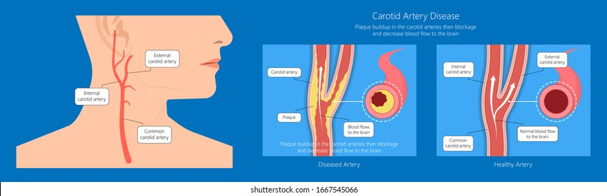 Coronary artery disease CAD diagnosis carotid duplex doppler ultrasound study treat Endarterectomy transient ischemic attack test TIA blocked blood flow neck stent