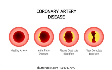 Coronary Artery Disease infographic. Heart awareness concept. Atherosclerosis stages in artery caused by cholesterol plaque. Vector illustration isolated on white background.