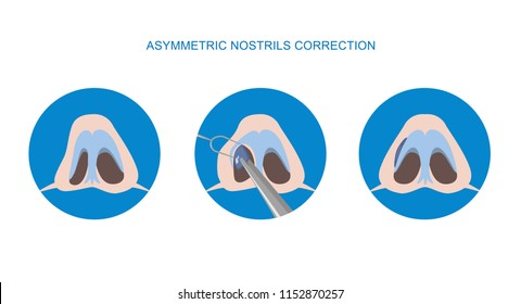 Correction of asymmetric nostrils. Rhinoplasty surgery vector. Implant. Vector illustration.