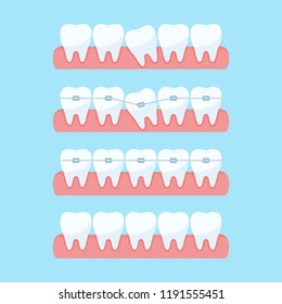 Correction of teeth with orthodontic braces. Stages of teeth alignment, before and after correction with brackets. Dental clinic services. Vector illustration in flat style