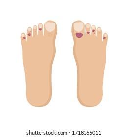 Covid Toe Trash Corona Virus Symptoms Flat Icon Vector Illustration