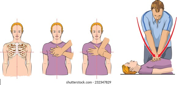 CPR demonstration (first aid).