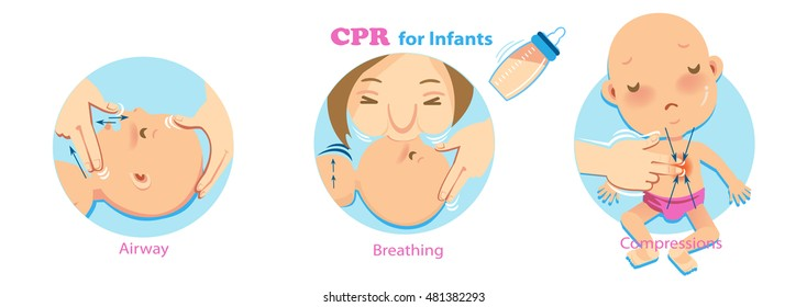 Cpr Infant Woman performing CPR.checking for signs of breathing. one hand compression.babies artificial respiration is done through infant's nose and mouth at the same time.