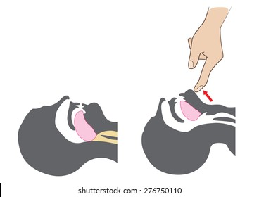 CPR open airway (head tilt chin lift) first aid measures.