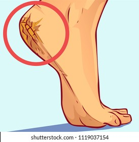 Cracked heels, vector illustration