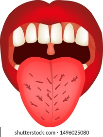 Cracks in the tongue. Definition of a disease according to human tongue. Diagnostics by tongue. Tongue Vector illustration on isolated background.
