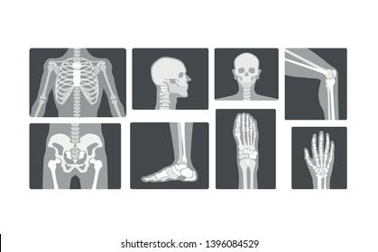 Creative Radiology Skeleton Bones Vector realistic X-ray Logo Design Illustration