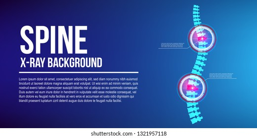 Creative vector illustration of spine x-ray, pain neck, disk degradation, injury treatment on background. Art design medical banner template. Abstract concept healthcare infographic graphic element
