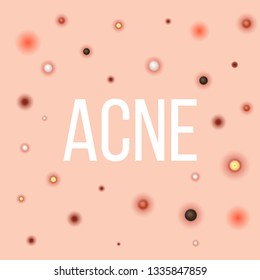 Creative vector illustration types of acne, pimples, skin pores, blackhead, whitehead, scar, comedone, stages diagram isolated on transparent background. Art design . Abstract concept graphic element