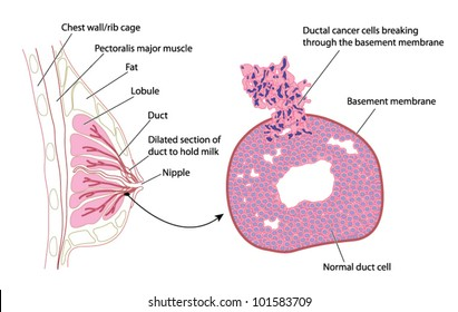 Cross section of female breast with detail of breast cancer