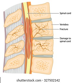 cross section through the spinal column showing fractured vertebrae and damage to the spinal cord