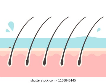 Cross-sectional view of the scalp during rinsing