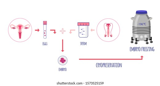 Cryo preservation of embryo. Egg and Sperm donation. Sperm banking. Embryo freezing. Vector illustration.