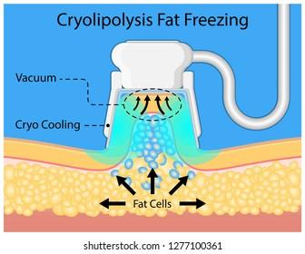 cryolipolysis fat freezing procedure cold treatment non invasive medication reduce temperature break down fat cells