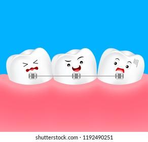 Cute cartoon teeth braces. Dental care concept. Illustration.