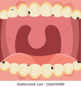 Cute cartoon teeth character in oral cavity illustration background. dental calculus is the calcified plaque, tartar, caries and  swollen gum. dentist pulls out sick tooth. Dental care concept.