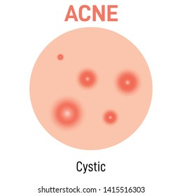 Cystic skin acne type vector icon. Skin disease acne whiteheads pimples type and face pore comedones. Type of acne  illustration vector on white background.