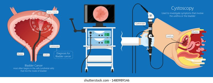 Cystoscopy diagnose bladder diseases and conditions