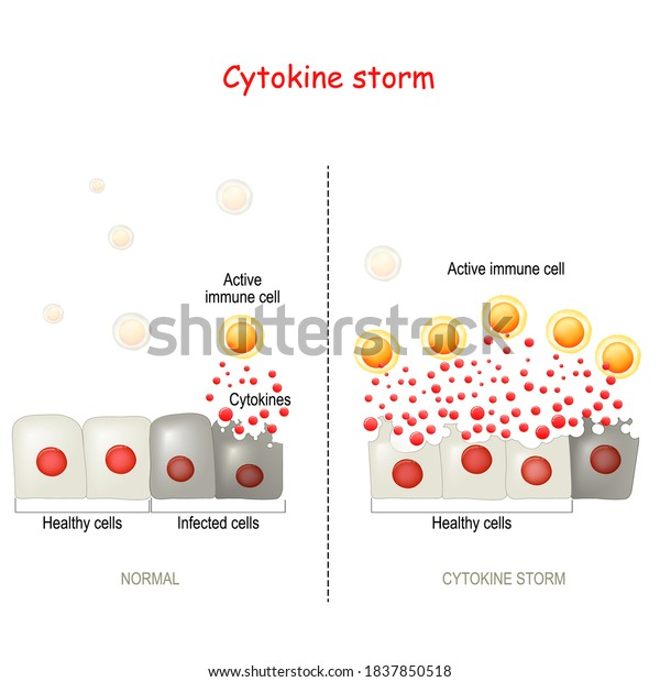 cytokine storm or hypercytokinemia. COVID-19 complications. physiological reaction in which the innate immune system causes an uncontrolled and excessive release of pro-inflammatory signaling molecule