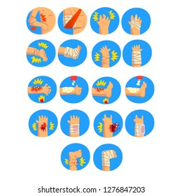 Damaged body parts set, sprains, fractures, burns of the arms and legs, first aid and treatment vector Illustration on a white background