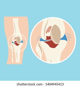 Damaged human knee joint. Cartilage injuries. Osteoarthritis. Musculoskeletal system disease