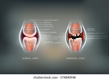 Damaged Synovial joint and normal joint colorful design on an abstract grey background.