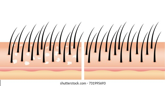 dandruff on hair before and after (vector),hair scalp  treatment of dandruff