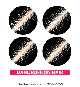 Dandruff on hair to clear steps vector illustration