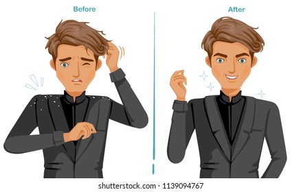 Dandruff on the shoulders. Man In black suit. Difference of scalp problem and good hair health. Feeling happy and satisfied. Illustrations for products. Vector isolated on white background.