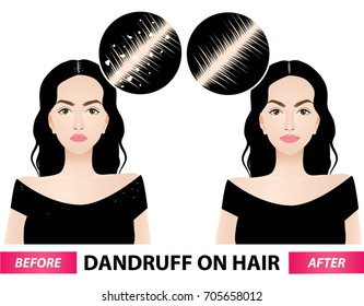 Dandruff on woman hair before and after vector illustration