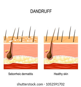 Dandruff. seborrheic dermatitis can occur due to dry skin, bacteria and fungus on the scalp. It causes formation of dry skin flakes. compare normal and abnormal hair on the skin