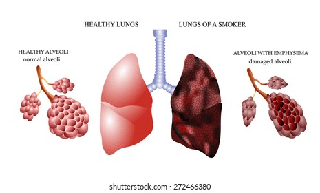 the dangers of Smoking, the lungs of a healthy person and smoker alveoli