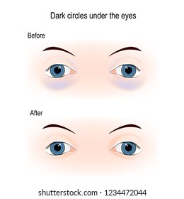 Dark circles under the eyes. Before and After Filler injection under the eyes. Removal of dark circles around the eyes. care for eye skin. Vector diagram for skin care, and medical use