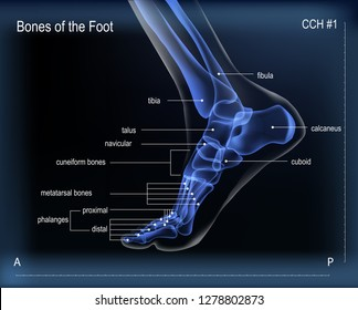 Dark navy blue vector realistic x ray of skeleton of foot. Human leg with titles of bones. Anatomy of joints. Medial view. For advertising or medical publications. Illustration stock vector.