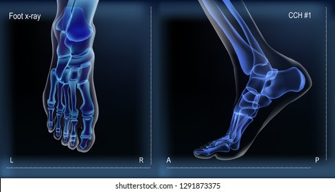 Dark navy blue vector realistic medial and top x ray of skeleton of foot. Human leg bones. Anatomy of joints. For advertising or medical publications. Illustration stock vector.