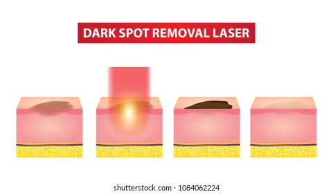 Dark spot laser steps vector illustration