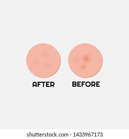 Dark spots treatment comparison. vector illustration