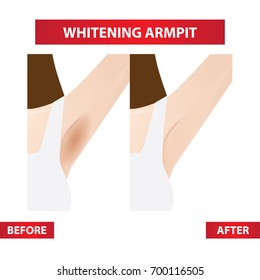 dark , white armpit before and after vector illustration