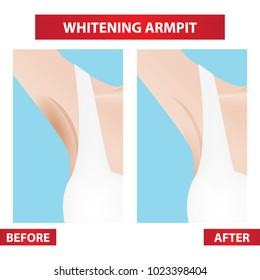 dark , whitening armpit before and after vector illustration