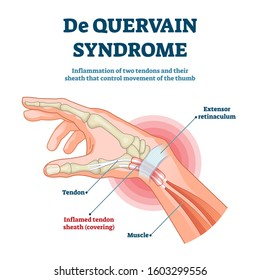 De Quervain syndrome vector illustration. Labeled thumb inflammation scheme. Painful disease diagnosis anatomical explanation. Hand tendon sheath covering pathology diagram. Chronic health problem.