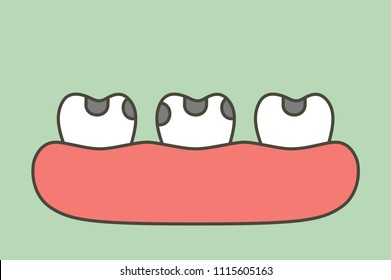 decay tooth or dental caries - teeth cartoon vector flat style cute character for design