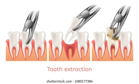 Decay Tooth Extraction Procedure. 3d Vector Teeth Removal. Dentistry Toothache. Concept Take Care of your Stomatology.